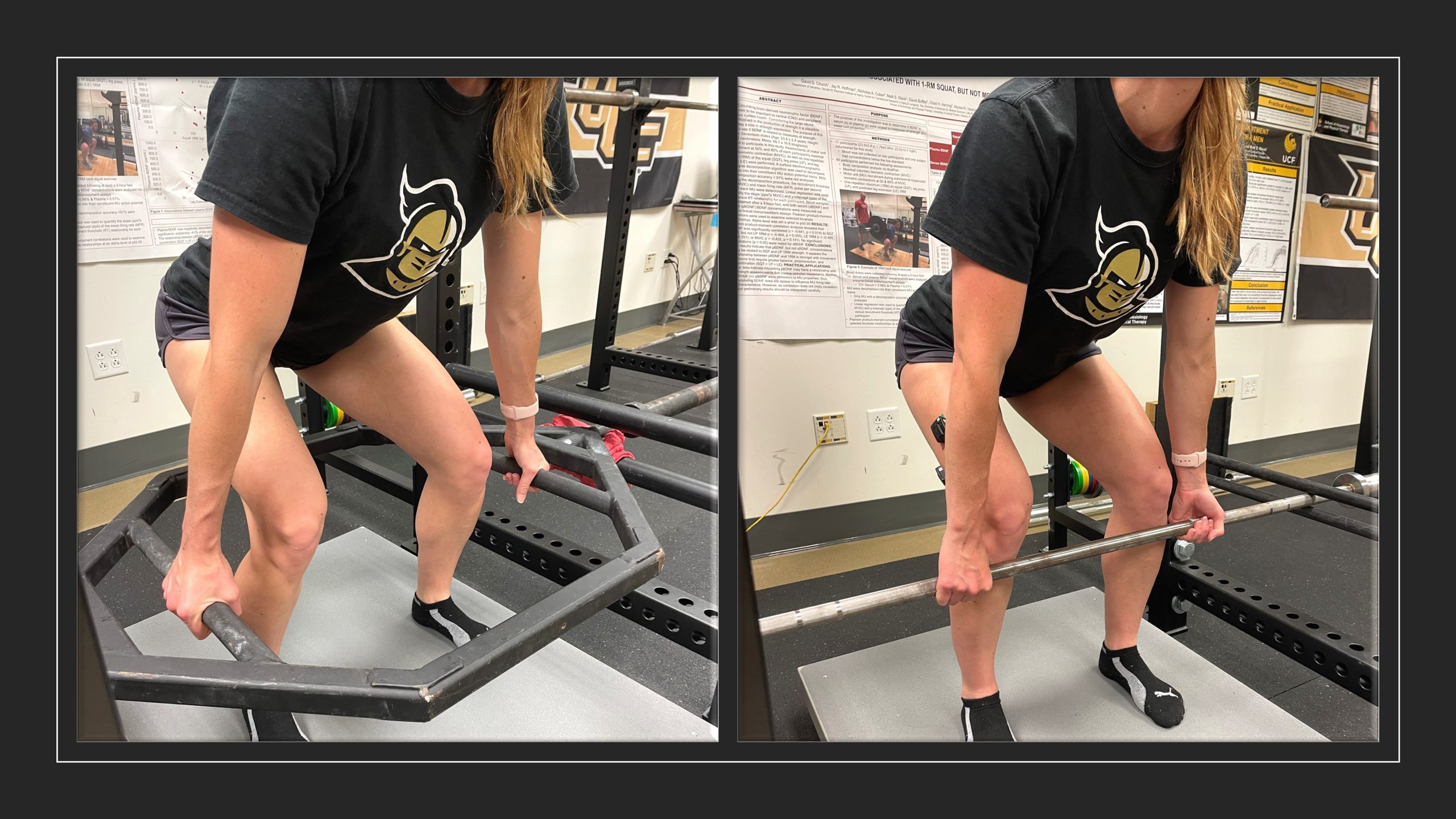 Neuromuscular Attributes during Deadlift Variations in Individuals with Acute, Nonspecific Low Back Pain: A Pilot Study